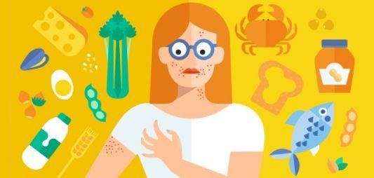Ez csak allergia – Veszélyes lehet, ha elbagatellizáljuk